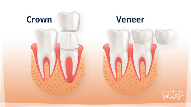 Diagram of a Dental Crown and Dental Veneer