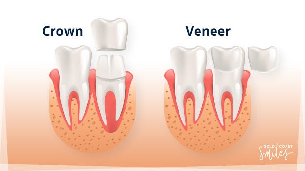 Diagram of a Dental Crown and Dental Veneer