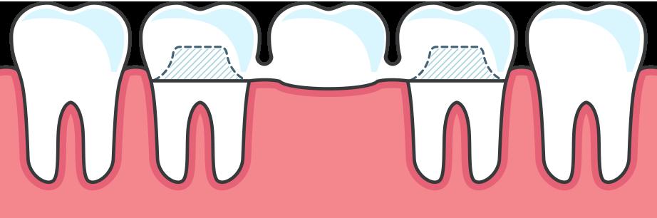 Diagram of a Dental Bridge on existing teeth
