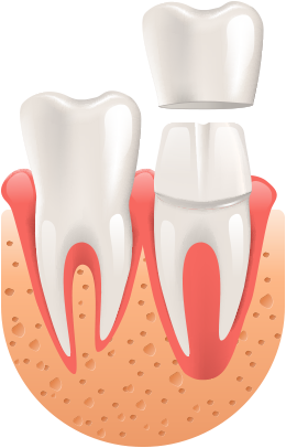 Diagram of a Dental Crown Tooth Insertion