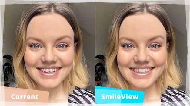 Invisalign Smileview Simulator
